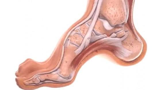Конская стопа у ребенка: лошадиная нога - причины, лечение и профилактика болезни