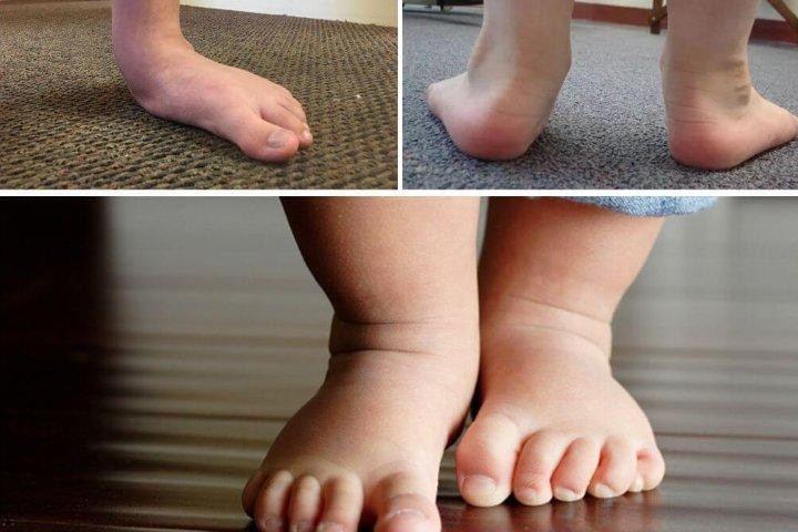 Вид стопы ребенка в 2 года